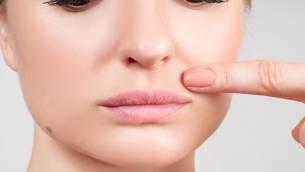 Bullhorn Lift – Gesichtsverjüngung und Lippenvergrößerung in einem Schritt