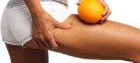 Tschüss Cellulite – Dank der revolutionären Cellulite-Behandlung Cellfina™