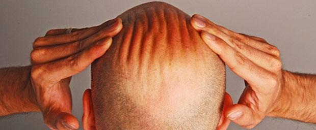 Männer für Haarausfall-Studie gesucht
