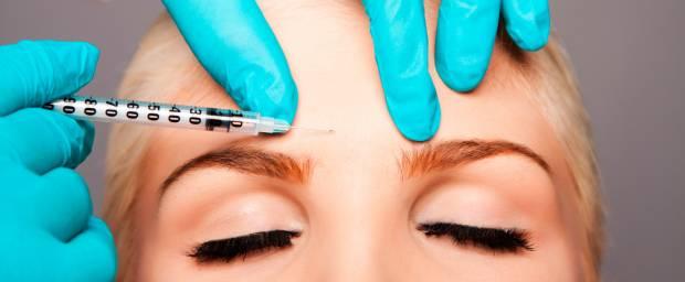 Faltenunterspritzung (Injektionsbehandlung)