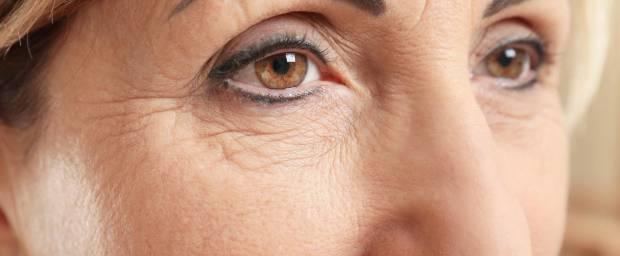 Gesicht mit Falten einer älteren Dame