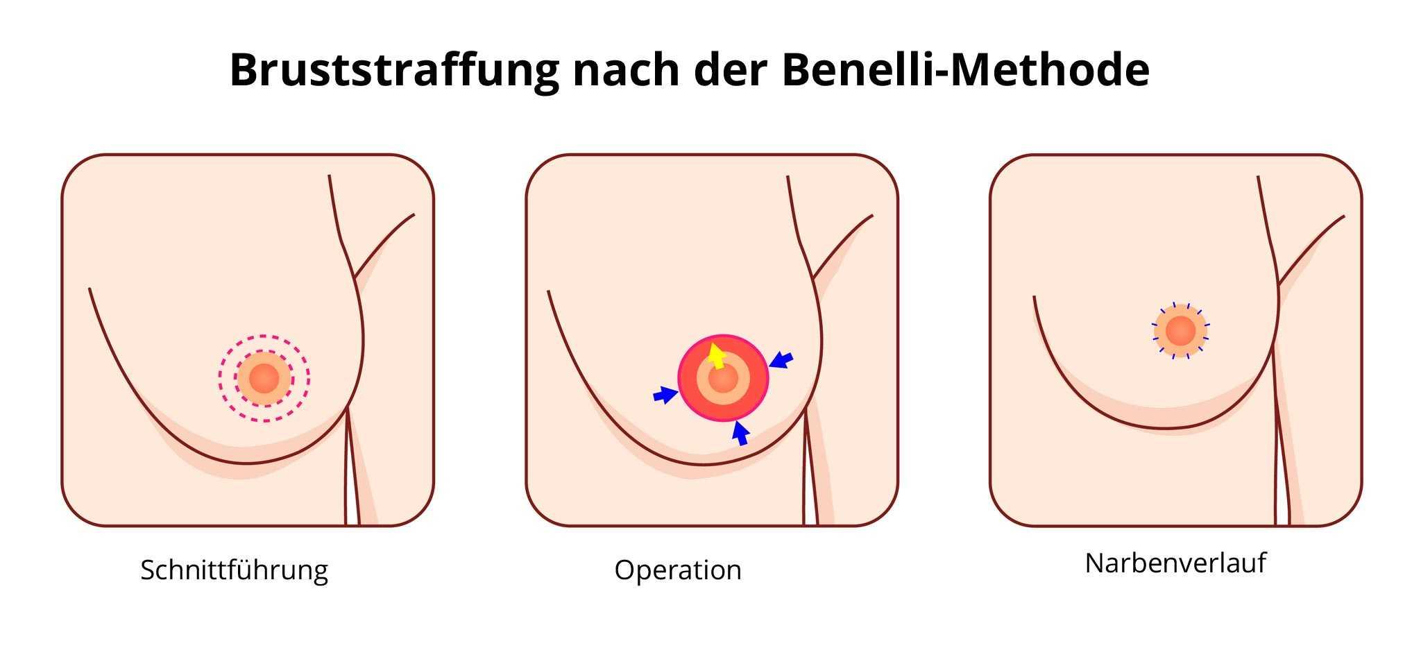 Nachher brustwarzen schwangerschaft vorher Die Brust