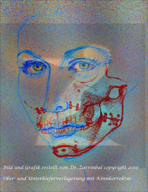 , Dr. med. Ramin Zarrinbal, Klinikpraxis an der Havelklinik, Berlin, Mund-Kiefer-Gesichtschirurg (Facharzt für Mund-Kiefer-Gesichtschirurgie), Plastische Operationen