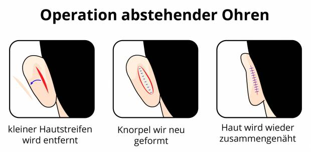 Operation abstehender Ohren